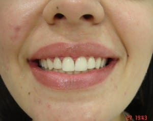 estetica_dental_2